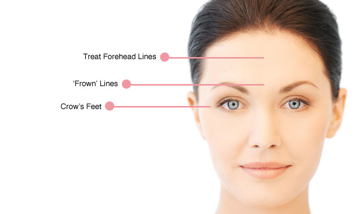 To Know About Forehead Wrinkles Causes and Treatments