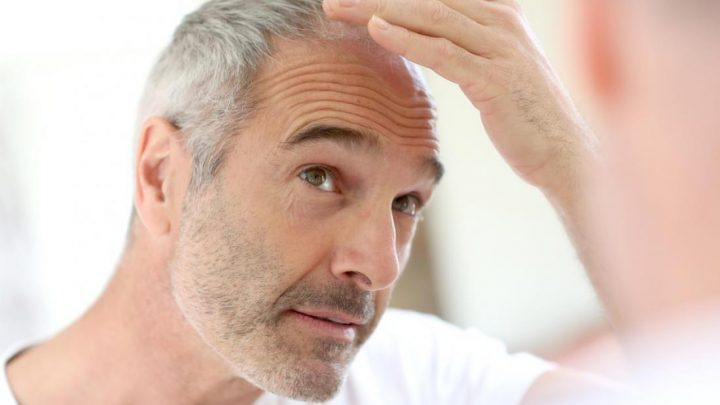 Hair Transplant Side Effects Which You Must Be Aware Of!