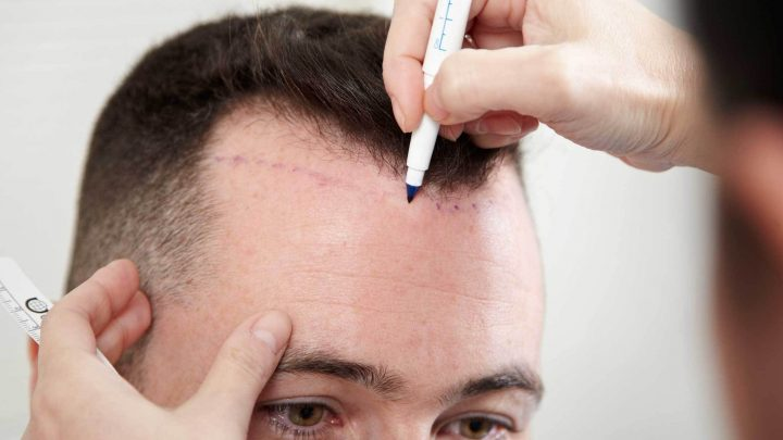Top 5 Consideration: How to Choose the Best Hair Transplant Center