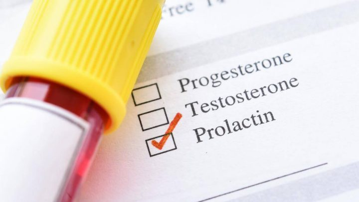 How To Get Prolactin Levels Down?
